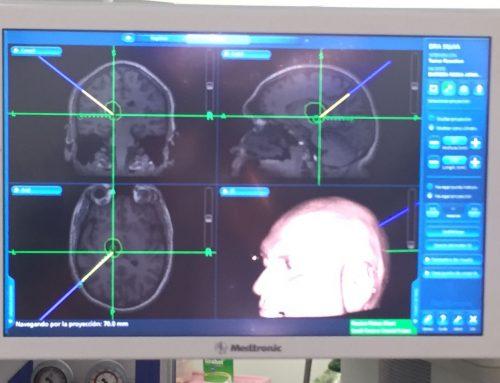 Abordaje a quiste Talámico izquierdo mediante Neuronavegación y Magnificación Endoscópica