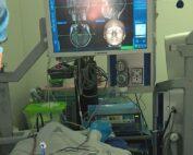 Primera cirugia de epilepsia Lobectomia Amigdalohipocampectomía