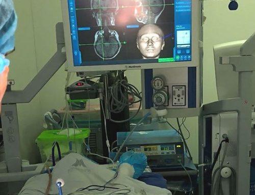 Primera Cirugía para el Tratamiento de la Epilepsia en Barranquilla