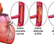 miocardio