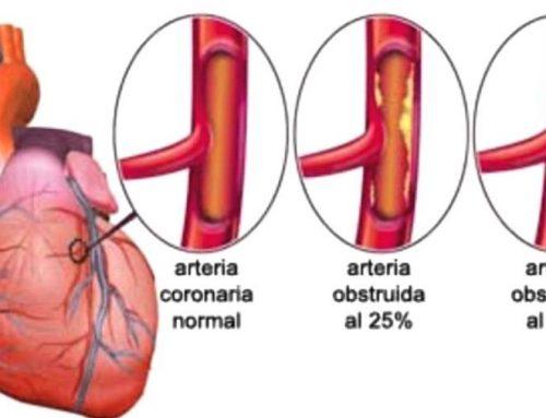 Lo que se debe saber del infarto agudo de miocardio