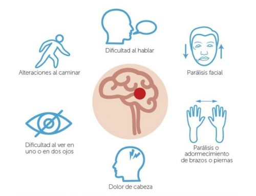 Accidente Cerebro Vascular (ACV): ayúdanos a salvar vidas